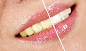 otbelivanie-zubov1-300x178-6466461