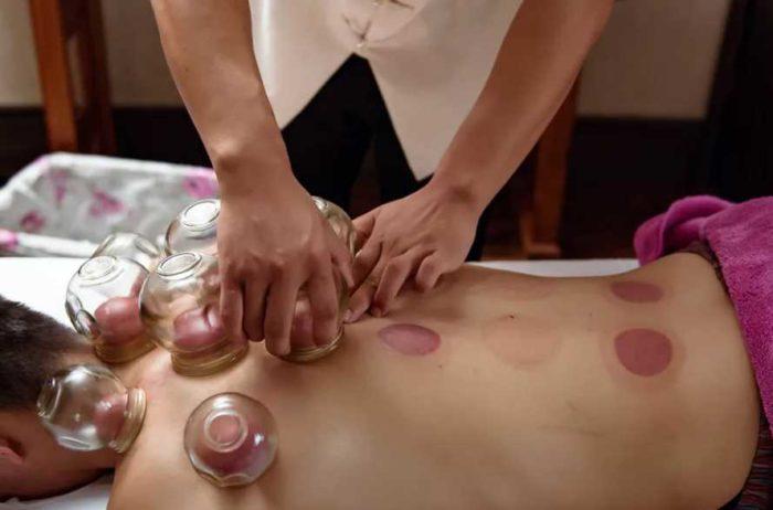 Как правильно ставить банки на спину и делать баночный массаж