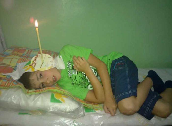 Как правильно использовать свечи для ушей