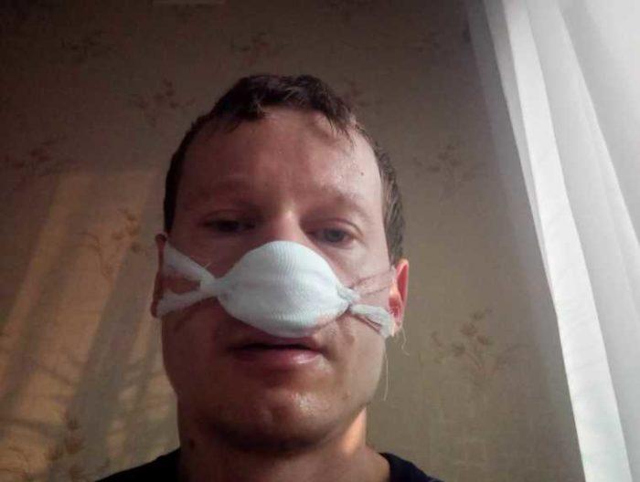 Нужно ли делать исправление перегородки носа?